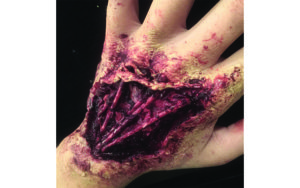 Special FX Hand Fake Blood Halloween Costume